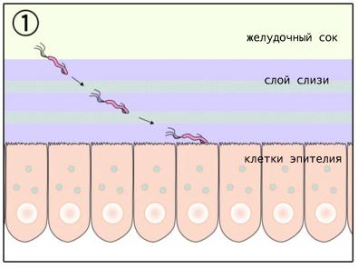 язва желудка 1 стадия фото