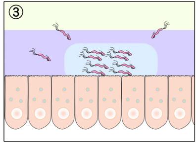 язва желудка 3 стадия фото
